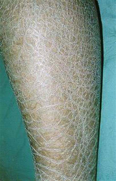 dry skin on legs picture 11