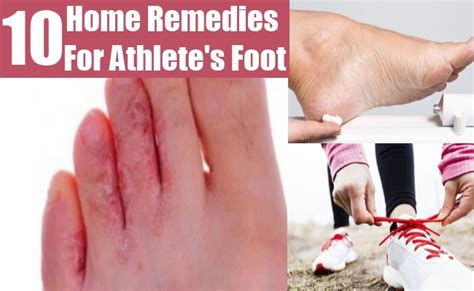 Athlete foot herbal remedy picture 6