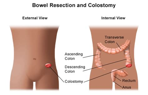 hernia bowel obstruction picture 9