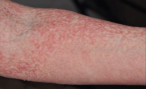 red rash with flaky skin on my arm picture 3