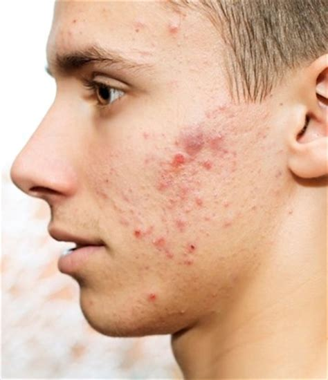 adolescent acne picture 6