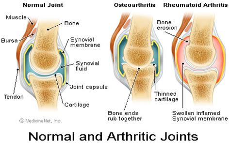 arthritis joint treatment picture 3