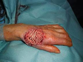 drug interaction sore's on skin picture 5