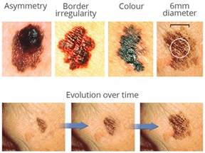 pictures of early skin cancer on chest picture 8