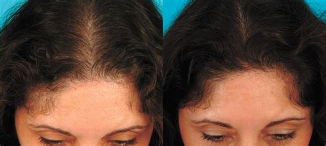 aldactone hair loss picture 7