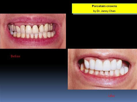 tooth whiten san francisco picture 6