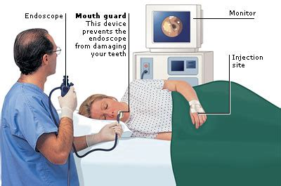 are you asleep during colonoscopy picture 11