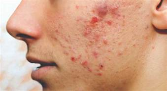 pimples picture 2