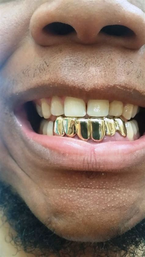fulton street gold teeth picture 9