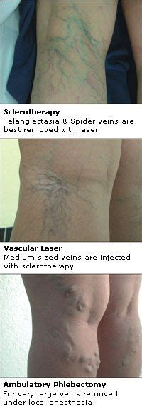 varicose vein treatment in abu dhabi picture 2