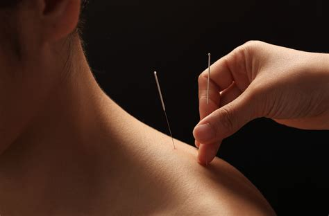 acupunture for weight loss picture 2