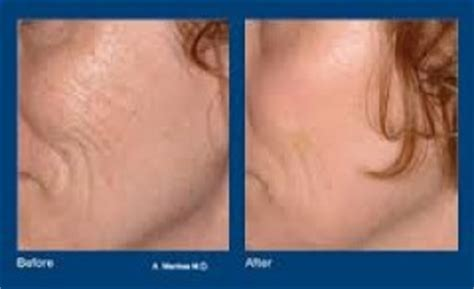 prices on cool beam therapy for stretch marks picture 4