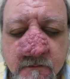 acne rosacea phymatous picture 5