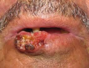 lips diseases picture 5