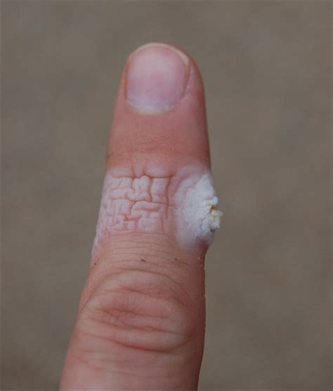 wart natural removal picture 14
