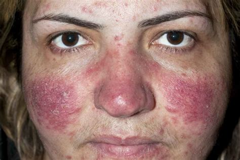 rosacea at 50 picture 5