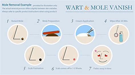 wart mole vanish fibroid picture 6