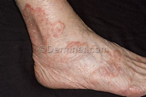 ringworm skin disease picture 5