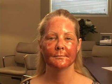 skin regeneration picture 5