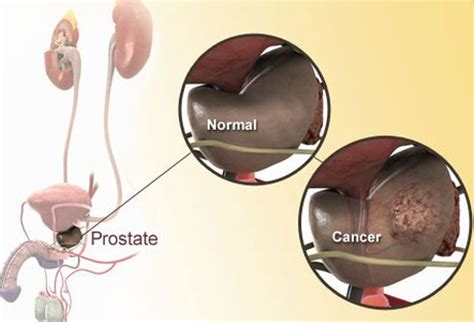 What is prostate cancer picture 7
