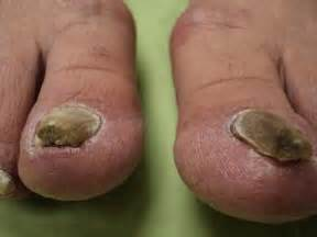 nail fungus and listerine picture 5
