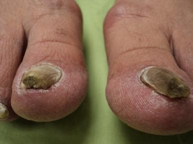nail fungus and listerine picture 14