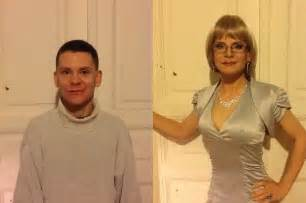 sissies before and after breast implants picture 3