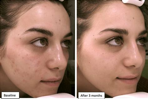 in how many day's peroxita clears acne from the face. picture 16