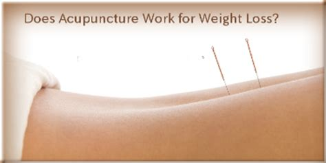 Acupuncture weight loss picture 7