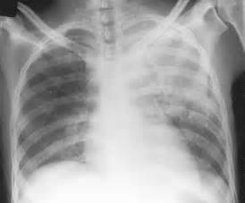 microbacterial pneumonia picture 1
