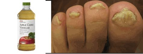 home remedy for toe nail fungus picture 6