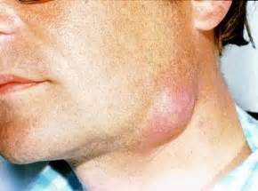 abcessed teeth and neck pain picture 6