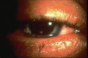 cornal herpes picture 5