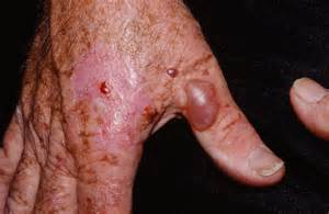 finger warts picture 10