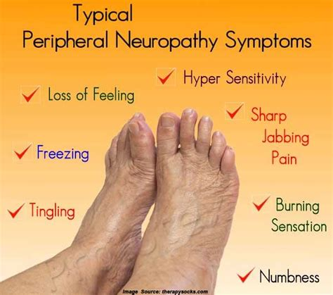 causes feeling of legs foot and hands asleep picture 13