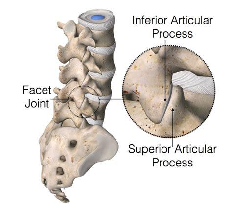 facet joint nerve eblasion picture 19
