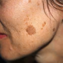 how to remove liver spots with wart remover picture 9