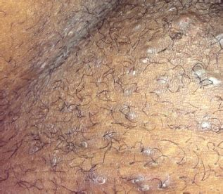 get rid of inflamed hair follicles ob vulva picture 15