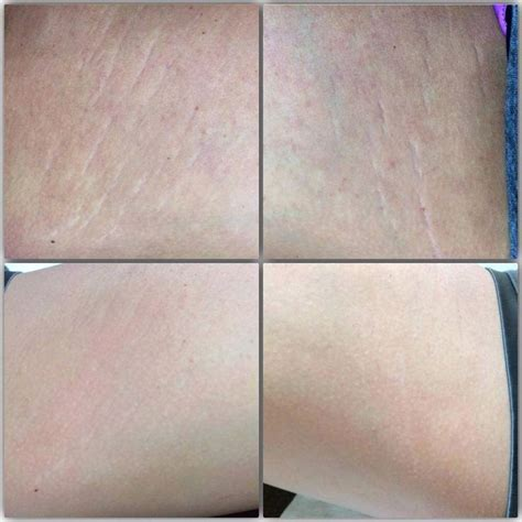 rodan and fields for stretch marks picture 12