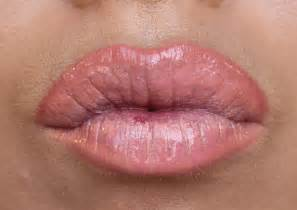 Lip wart picture 1