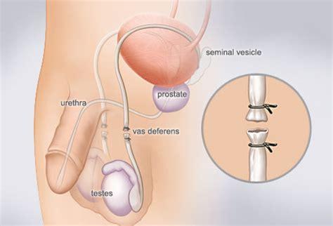 colon cleanse and birth control interactions picture 8