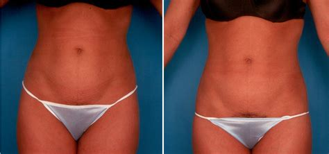 no scar weight loss surgery picture 3