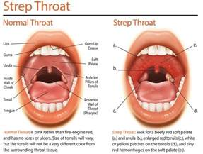 strep throat after thyroidectomy picture 2