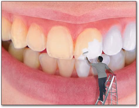 how much is it to whiten your teeth picture 7