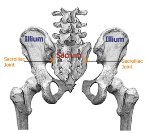sacroiliac joint back injury settlement amounts picture 14