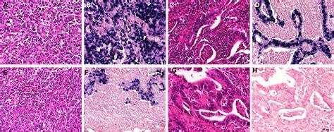 current intestinal virus 2015 picture 2