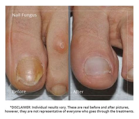 pin point laser for nail fungus in southern picture 8