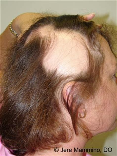 facil hair growth on women after radiation treatment picture 5