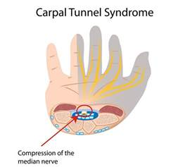 carpal tunnel pain relief picture 2
