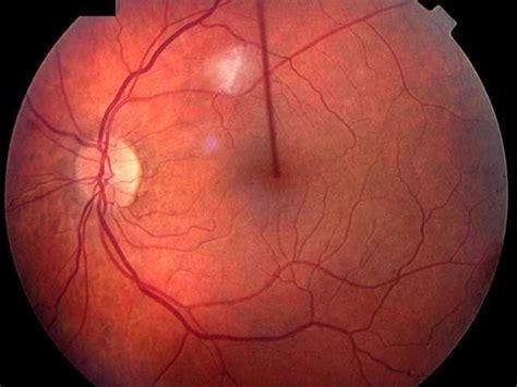 diabetic eye radio spots picture 11